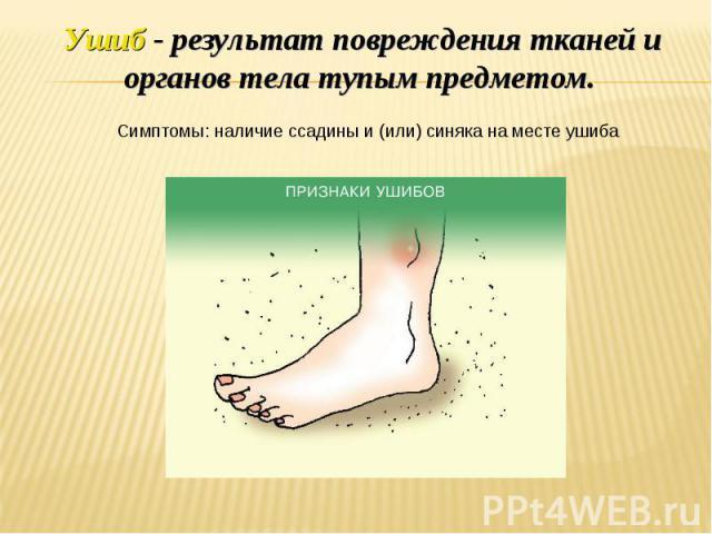 Ушиб - результат повреждения тканей и органов тела тупым предметом. Симптомы: наличие ссадины и (или) синяка на месте ушиба