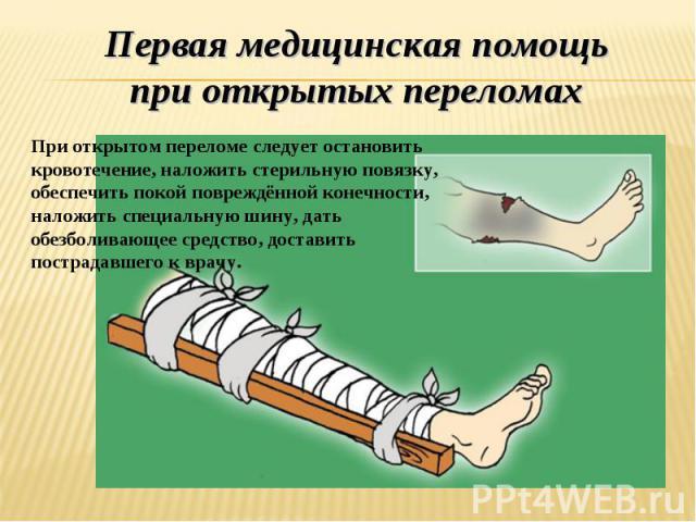 Первая медицинская помощь при открытых переломах При открытом переломе следует остановить кровотечение, наложить стерильную повязку, обеспечить покой повреждённой конечности, наложить специальную шину, дать обезболивающее средство, доставить пострад…