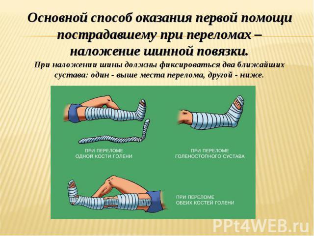 Основной способ оказания первой помощи пострадавшему при переломах – наложение шинной повязки. При наложении шины должны фиксироваться два ближайших сустава: один - выше места перелома, другой - ниже.