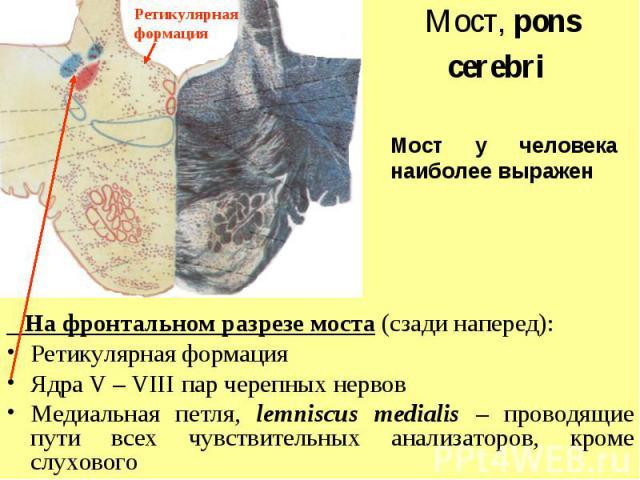 Мост у человека наиболее выражен Ретикулярная формация Мост, pons cerebri На фронтальном разрезе моста (сзади наперед): Ретикулярная формация Ядра V – VIII пар черепных нервов Медиальная петля, lemniscus medialis – проводящие пути всех чувствительны…