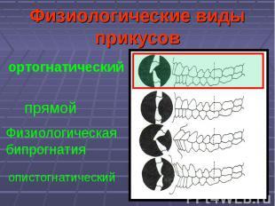 Физиологические виды прикусов прямой ортогнатический Физиологическая бипрогнатия