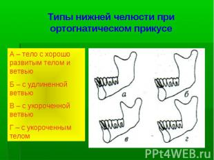 Типы нижней челюсти при ортогнатическом прикусе А – тело с хорошо развитым телом