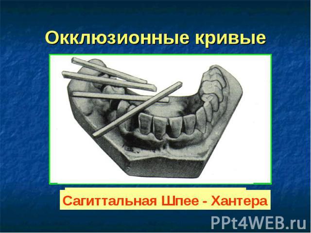 Окклюзионные кривые Трансверсальная Уилсона Сагиттальная Шпее - Хантера