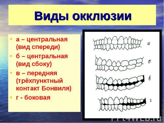 Виды окклюзии а – центральная (вид спереди) б – центральная (вид сбоку) в – передняя (трёхпунктный контакт Бонвиля) г - боковая