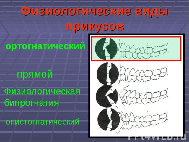 Физиологические виды прикусов прямой ортогнатический Физиологическая бипрогнатия опистогнатический