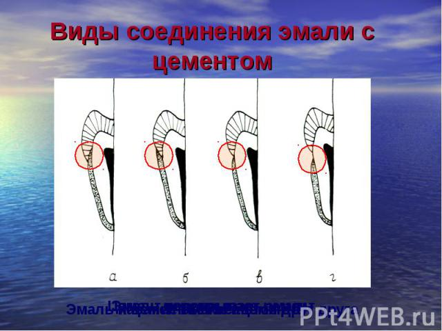 Эмаль перекрывает цемент Цемент перекрывает эмаль Касание эмали ицемента Эмаль и цемент не касаются друг друга Виды соединения эмали с цементом