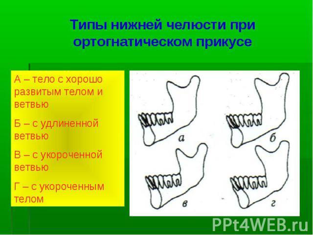 Типы нижней челюсти при ортогнатическом прикусе А – тело с хорошо развитым телом и ветвью Б – с удлиненной ветвью В – с укороченной ветвью Г – с укороченным телом