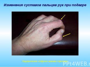 Изменения суставов пальцев рук при подагре Подагрические «тофусы» указаны стрелк