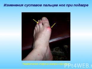 Изменения суставов пальцев ног при подагре Подагрические «тофусы» указаны стрелк