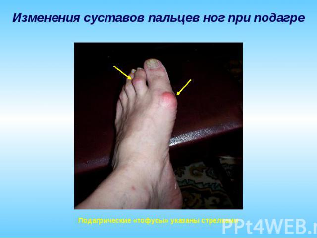 Изменения суставов пальцев ног при подагре Подагрические «тофусы» указаны стрелками
