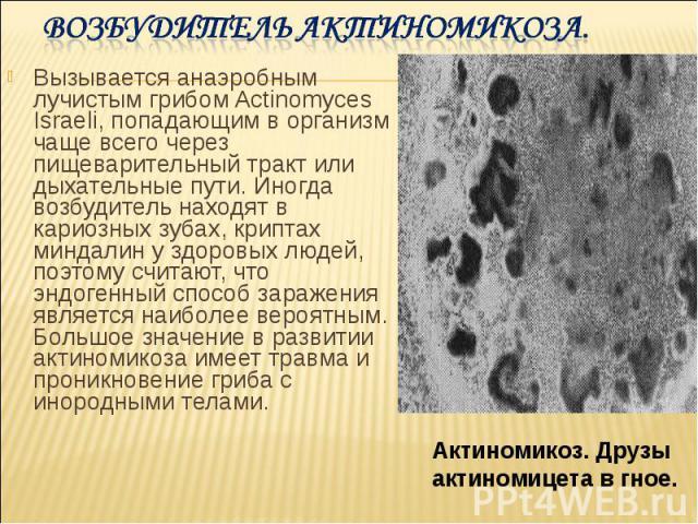 Вызывается анаэробным лучистым грибом Actinomyces Israeli, попадающим в организм чаще всего через пищеварительный тракт или дыхательные пути. Иногда возбудитель находят в кариозных зубах, криптах миндалин у здоровых людей, поэтому считают, что эндог…