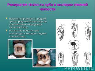 Раскрытие полости зуба в молярах нижней челюсти Вскрытие проводят в средней трет
