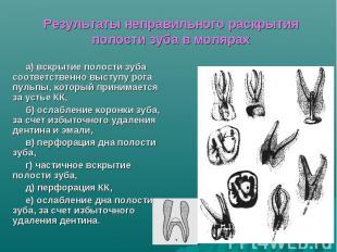 Результаты неправильного раскрытия полости зуба в молярах а) вскрытие полости зу