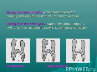 ПРАВИЛЬНО НЕПРАВИЛЬНО Вскрытие полости зуба – создание точечного сообщения карио