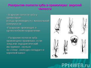 Раскрытие производят в щечно-небном направлении Раскрытие полости зуба в премоля