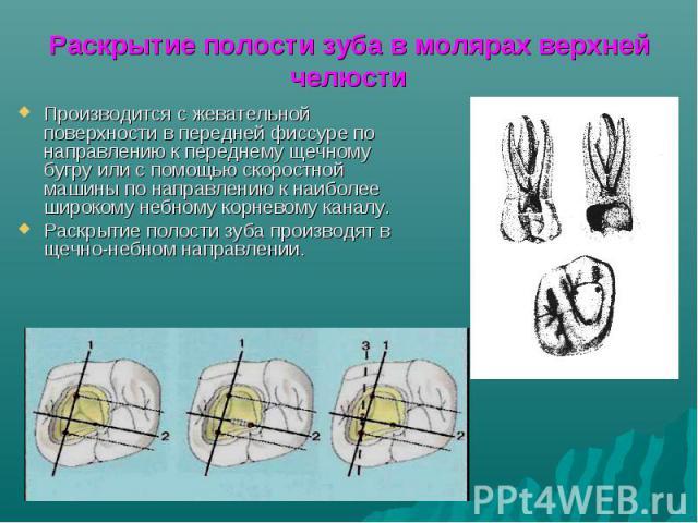 Раскрытие полости зуба в молярах верхней челюсти Производится с жевательной поверхности в передней фиссуре по направлению к переднему щечному бугру или с помощью скоростной машины по направлению к наиболее широкому небному корневому каналу. Раскрыти…