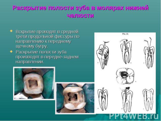Раскрытие полости зуба в молярах нижней челюсти Вскрытие проводят в средней трети продольной фиссуры по направлению к переднему щечному бугру. Раскрытие полости зуба производят в передне-заднем направлении.