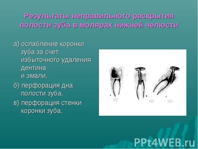 Результаты неправильного раскрытия полости зуба в молярах нижней челюсти а) ослабление коронки зуба за счет избыточного удаления дентина и эмали, б) перфорация дна полости зуба, в) перфорация стенки коронки зуба,