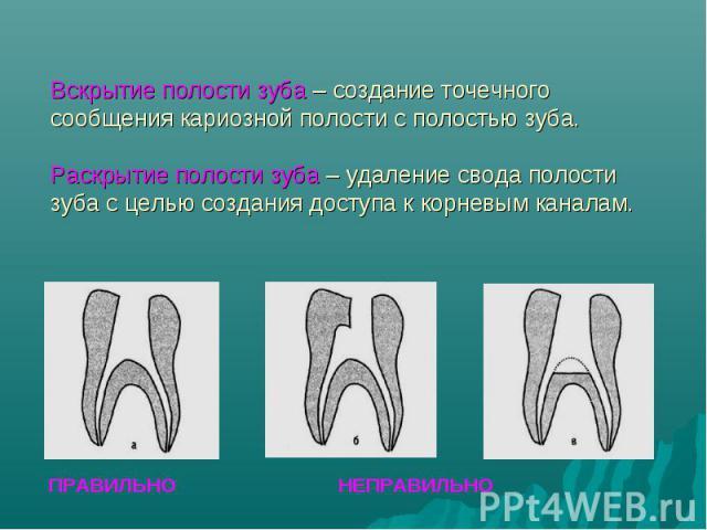 ПРАВИЛЬНО НЕПРАВИЛЬНО Вскрытие полости зуба – создание точечного сообщения кариозной полости с полостью зуба. Раскрытие полости зуба – удаление свода полости зуба с целью создания доступа к корневым каналам.