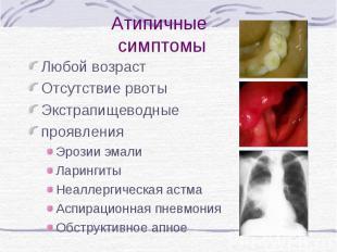 Атипичные симптомы Любой возраст Отсутствие рвоты Экстрапищеводные проявления Эр