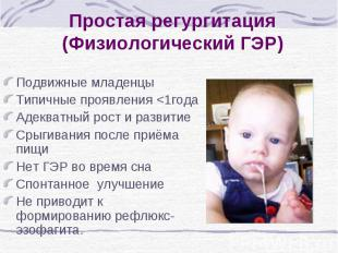 Простая регургитация (Физиологический ГЭР) Подвижные младенцы Типичные проявлени
