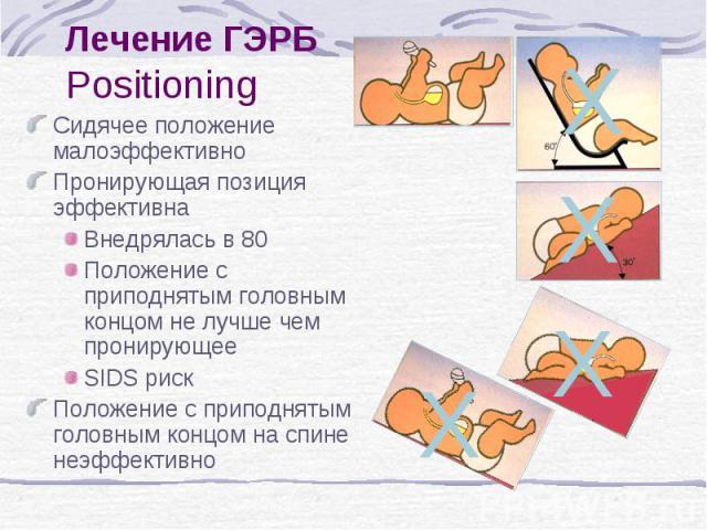 X X X X Лечение ГЭРБ Positioning Сидячее положение малоэффективно Пронирующая позиция эффективна Внедрялась в 80 Положение с приподнятым головным концом не лучше чем пронирующее SIDS риск Положение с приподнятым головным концом на спине неэффективно