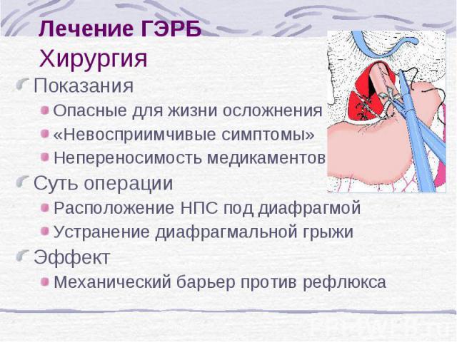 Лечение ГЭРБ Хирургия Показания Опасные для жизни осложнения «Невосприимчивые симптомы» Непереносимость медикаментов Суть операции Расположение НПС под диафрагмой Устранение диафрагмальной грыжи Эффект Механический барьер против рефлюкса