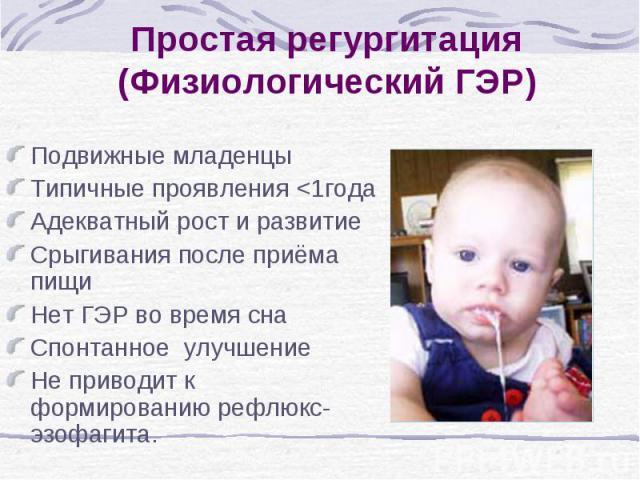 Простая регургитация (Физиологический ГЭР) Подвижные младенцы Типичные проявления