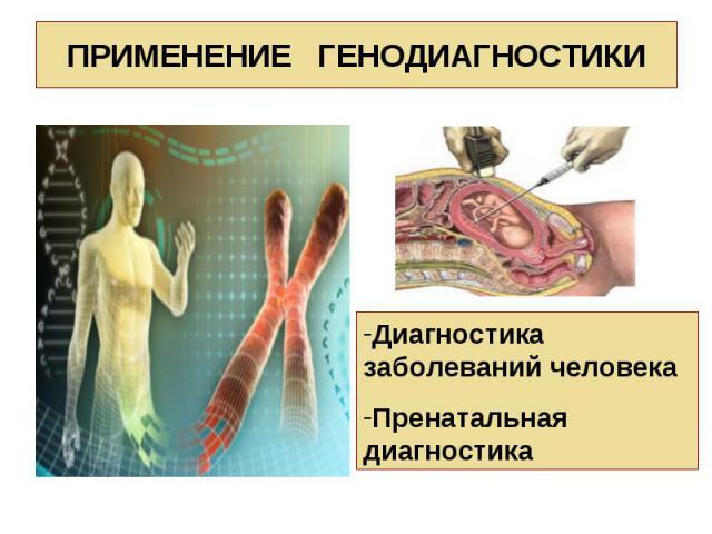 Диагностика заболеваний человека Пренатальная диагностика ПРИМЕНЕНИЕ ГЕНОДИАГНОСТИКИ