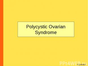 Polycystic Ovarian Syndrome FQN0009