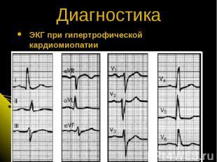 ЭКГ при гипертрофической кардиомиопатии Диагностика