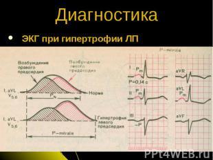 ЭКГ при гипертрофии ЛП Диагностика