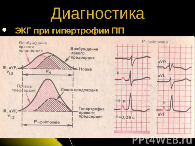 ЭКГ при гипертрофии ПП Диагностика