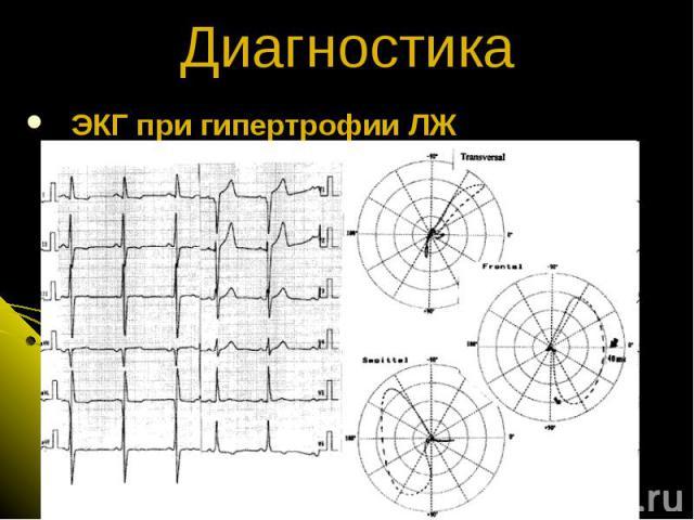 ЭКГ при гипертрофии ЛЖ Диагностика