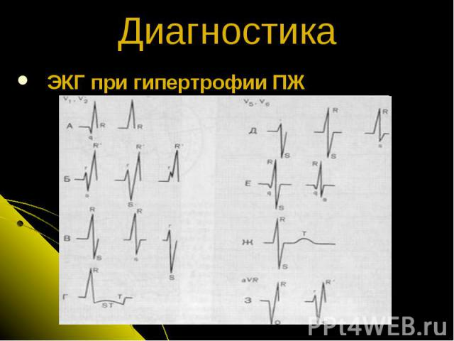 ЭКГ при гипертрофии ПЖ Диагностика