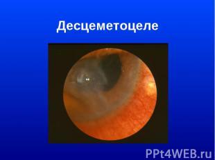 Десцеметоцеле