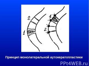 Принцип монолатеральной аутокератопластики