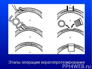 Этапы операции кератопротезирования