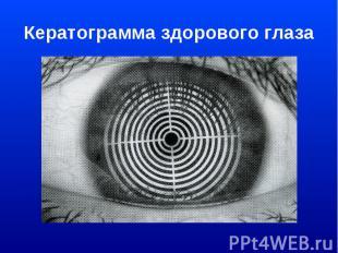 Кератограмма здорового глаза