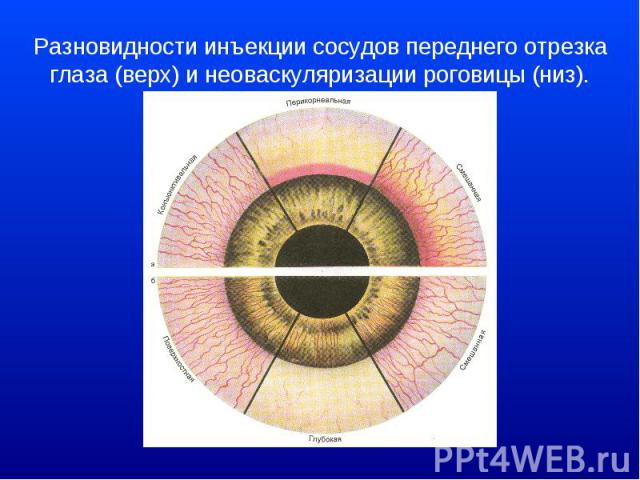 Разновидности инъекции сосудов переднего отрезка глаза (верх) и неоваскуляризации роговицы (низ).