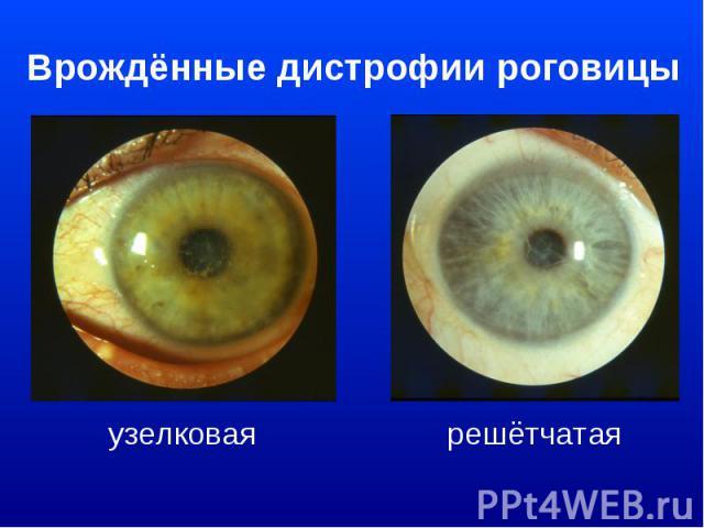 Врождённые дистрофии роговицыузелковая решётчатая