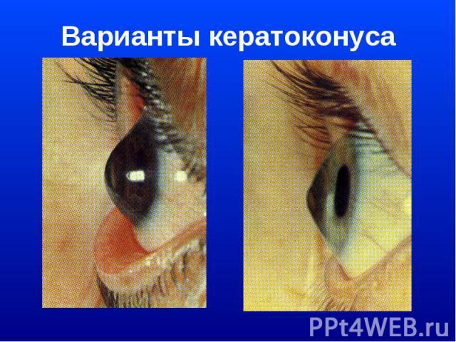 Варианты кератоконуса