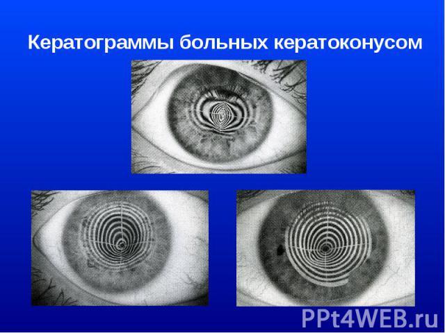 Кератограммы больных кератоконусом