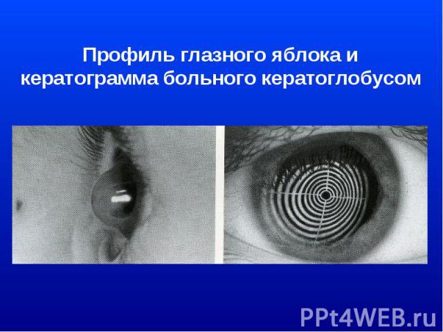 Профиль глазного яблока и кератограмма больного кератоглобусом