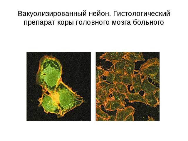 Вакуолизированный нейон. Гистологический препарат коры головного мозга больного