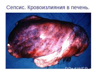 Сепсис. Кровоизлияния в печень.