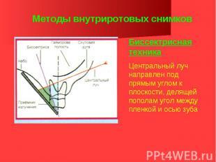 Методы внутриротовых снимков Биссектрисная техника Центральный луч направлен под