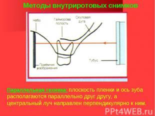 Методы внутриротовых снимков Параллельная техника: плоскость пленки и ось зуба р