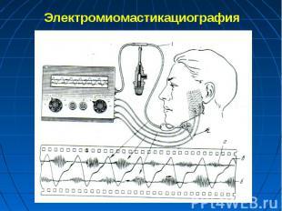 Электромиомастикациография