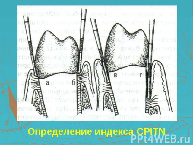 Определение индекса CPITN